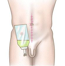 schéma stomie urinaire