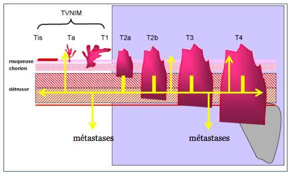 schéma explicatif pronostic tumeur vessie